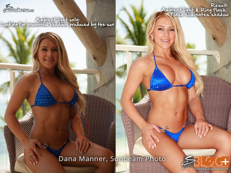 Unwanted Shadow Cast by Sun - Bikini Model Champion Photo Shooting - Success Story